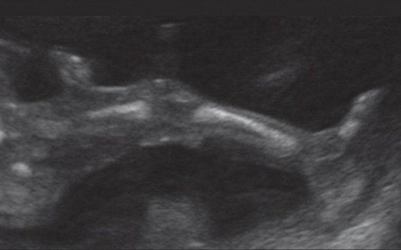 سونوگرافی جنین در هفته پانزدهم بارداری