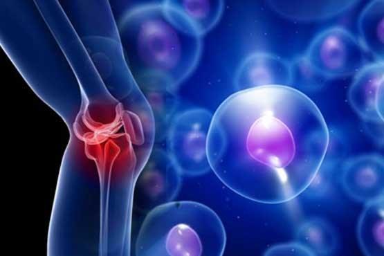 سلول های بنیادی و بیماریهای صعب العلاج