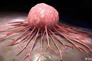 دوری از سبک زندگی غلط ابتلا به سرطان را کم میکند/چاقی و اضافه وزن دو عامل مهم سرطان