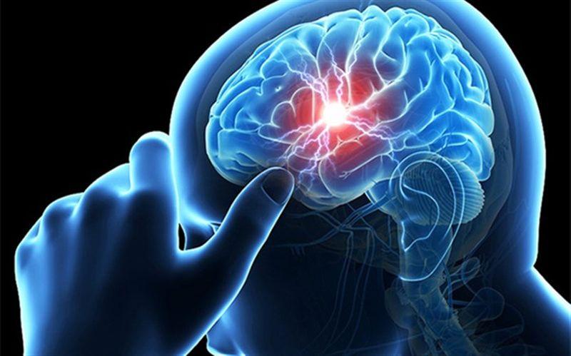 نشانههای سکته مغزی چیست؟