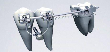 تولید پانسمانی برای کاهش فوری دردهای دندانی