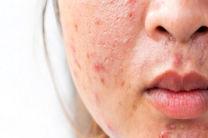 بیماری های پوستی سریعتر شناخته می شوند