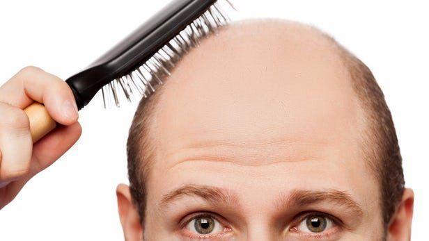 شناسایی علت سفید شدن و ریختن موها
