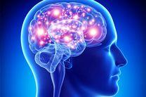اختلالات خواب منجر به تغییرات ساختاری وعملکردی در مغز می شود
