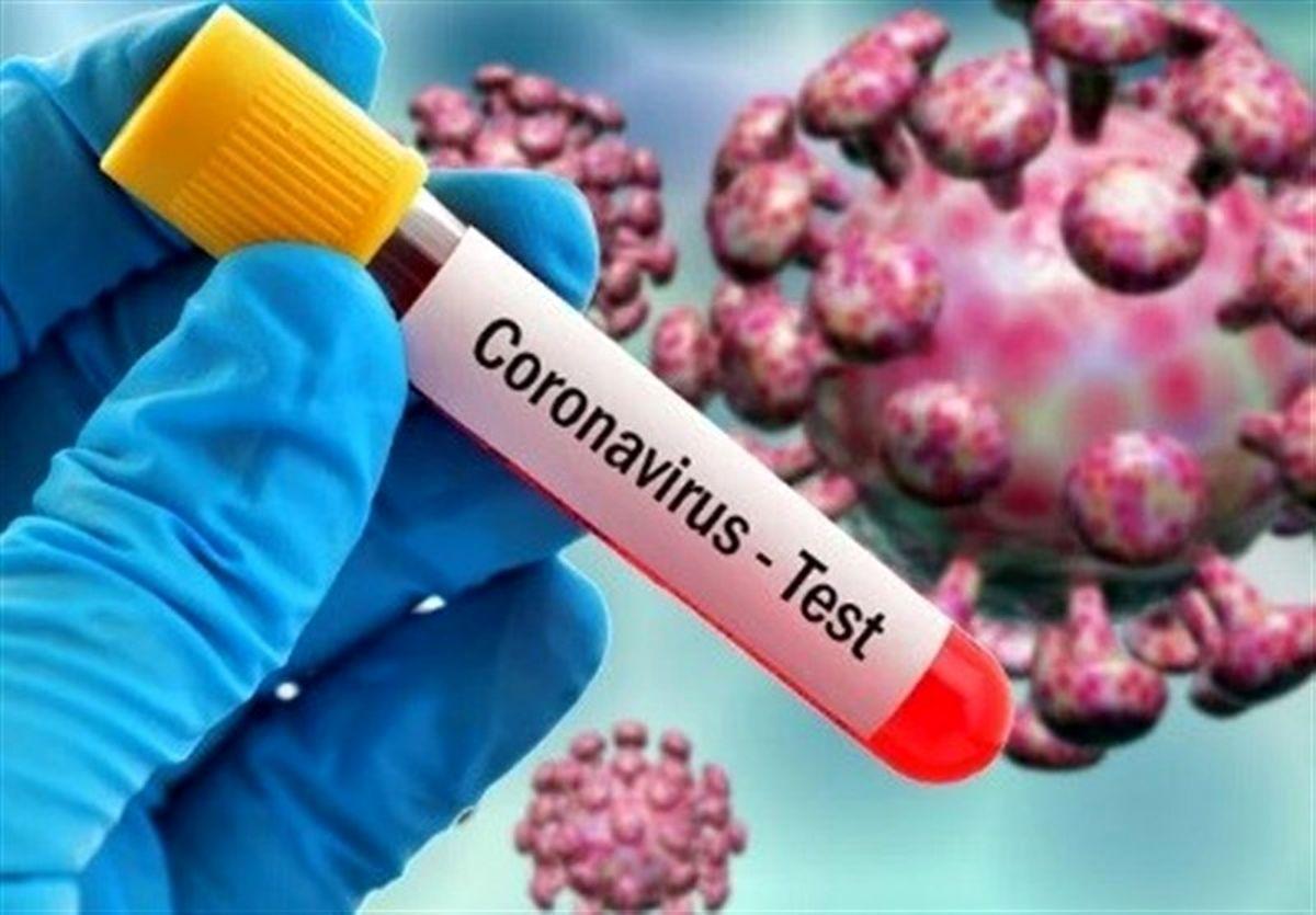48 ابتلای جدید به ویروس کرونا در منطقه کاشان / تعداد کل بستری ها 444 بیمار