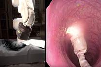 کپسول رباتیک جایگزین غیرتهاجمی برای کولونوسکوپی