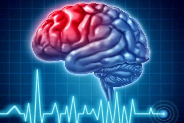 برای اولین بار، درمان بیماری سکته مغزی در کهگیلویه و بویراحمد