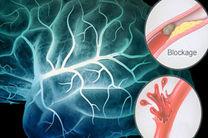 بروز یک سکته مغزی در هر سه دقیقه در کشور