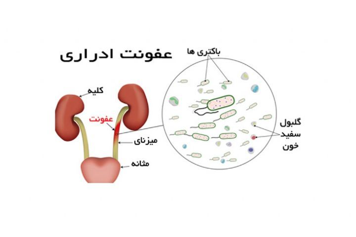 راه حل ساده برای جلوگیری از عفونت مجاری ادراری