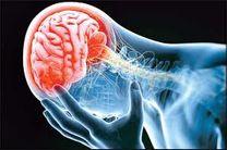 300 درمان موفق سکته مغزی حاد طی ۶ ماه گذشته/ علائم و نشانههای سکته مغزی