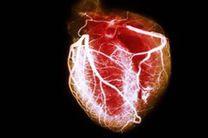 عضلات ساخته شده از سلول بنیادی به پزشکی قلبی عروقی کمک می کند
