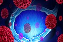 استفاده از میکروب ها و محصولات میکروب ها در درمان سرطان
