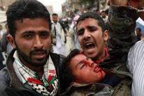 شیوع وبا در یمن در نتیجه جنگ و تحریم عربستان
