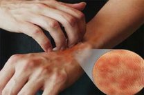 خارش شدید پوست هنگام شب از علائم بیماری گال است