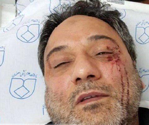 بازداشت فرد مهاجم به پزشک و پرستار بیمارستان فارابی اصفهان
