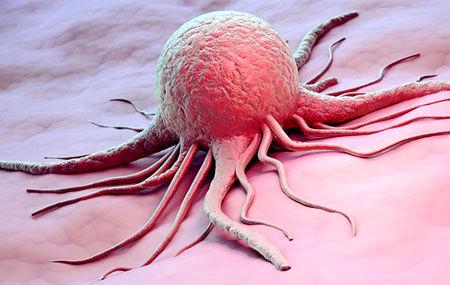 آمار بالای مرگ و میر زنان بر اثر ابتلا به سرطان پستان