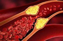 گرفتگی عروق قلب را چگونه با طب سنتی درمان کنیم؟