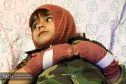 بیشترین معلولیت بر اثر حوادث چهارشنبه سوری سال گذشته در سنین ۱۰ تا ۱۴ سال بود
