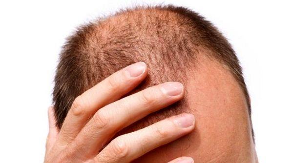 مواد غذایی مناسب برای تقویت مو