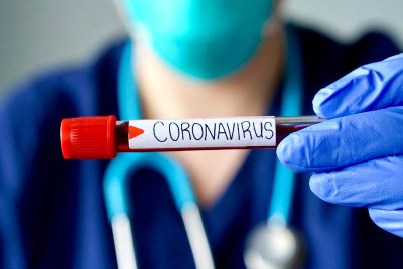 آزمایشات تشخیص ویروس کرونا بطور کامل در کردستان انجام میگیرد