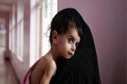 200 میلیون کودکِ زیر 5 سال از سوتغذیه رنج می برند