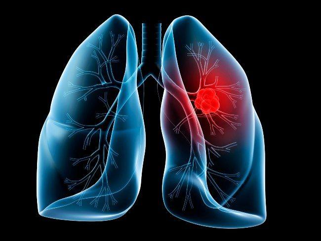 علائم سرطان ریه در زنان چیست؟