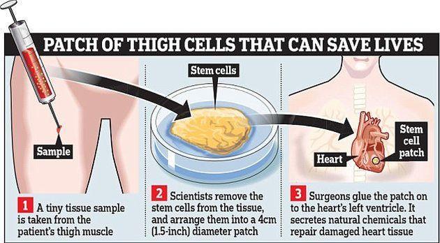 درمان نارسایی قلبی با روشی نوین