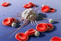 کدام سرطانها در مردان شایع تر است؟