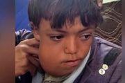 افزایش ابتلای کودکان یمنی به سرطان در نتیجه سلاحهای ممنوعه