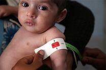 تخصیص اعتبار برای رفع سوء تغذیه کودکان هرمزگانی