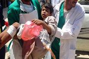 شهادت یک شهروند یمنی در حمله رژیم سعودی به الحدیده