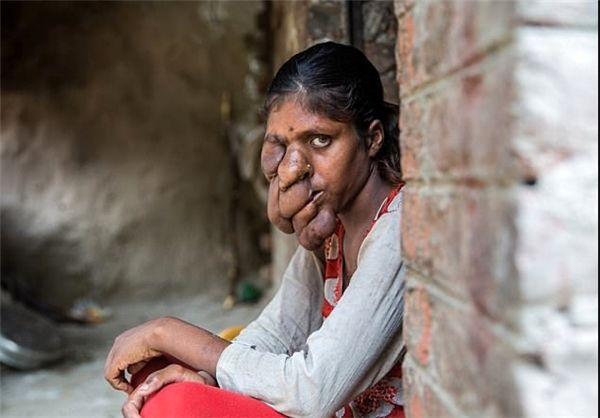 بیماری ژنتیکی عجیب دختر هندی