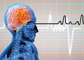 فشار خون بالا اولین علت سکته مغزی/وضعیت فشار خون ایرانیها